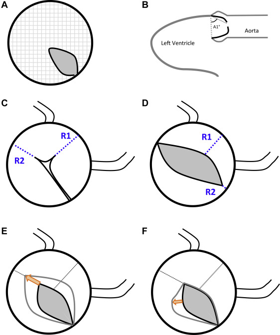 Aortic Stenosis In Children: Relation Of Aortic Valve Morphologic Characteristics To